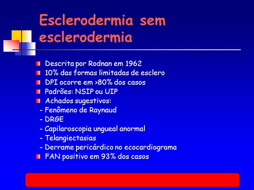 Esclerodermia sem esclerodermia Descrita por Rodnan em 1962 10% das formas limitadas de esclero DPI ocorre em >80% dos casos Padrões: NSIP ou UIP Achados sugestivos: - Fenômeno de Raynaud - DRGE - Capilaroscopia ungueal anormal - Telangiectasias - Derrame pericárdico no ecocardiograma FAN positivo em 93% dos casos