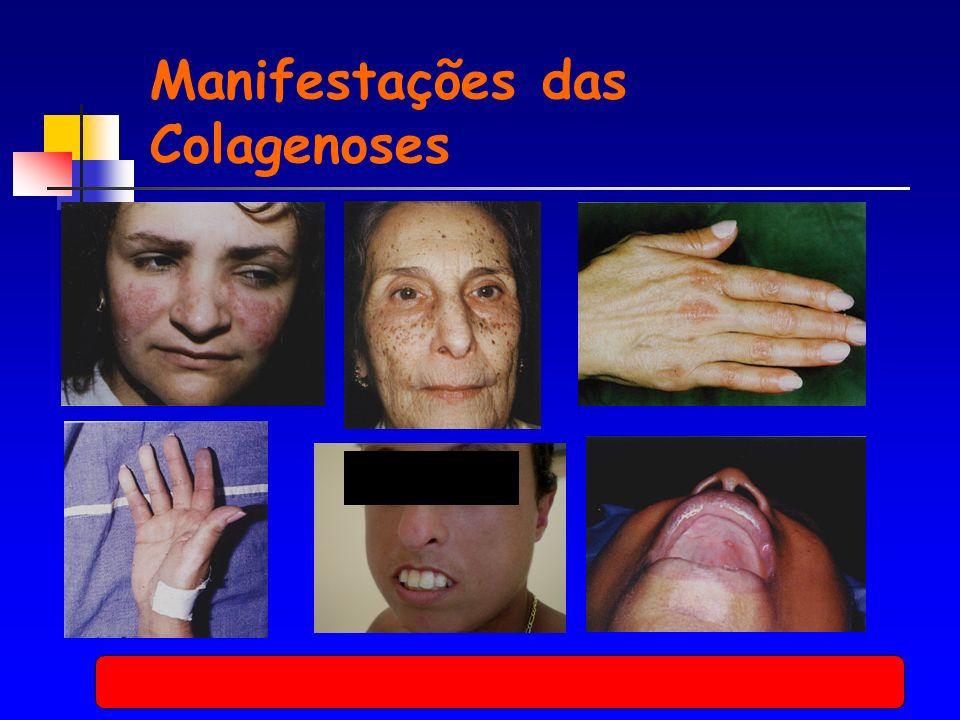 Manifestações das Colagenoses