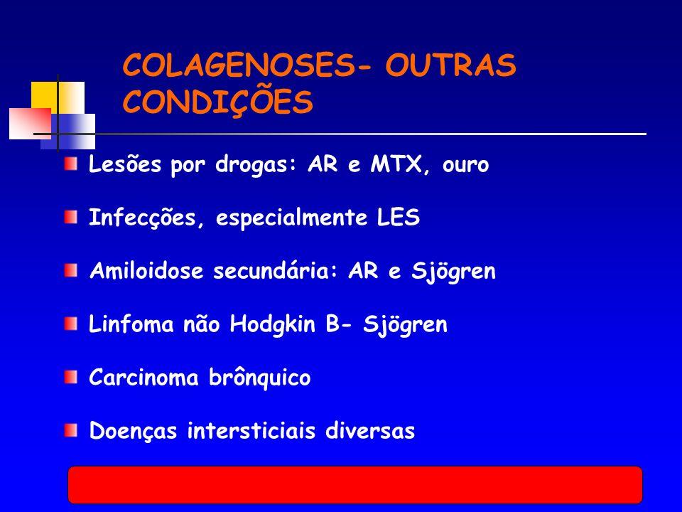 COLAGENOSES- OUTRAS CONDIÇÕES Lesões por drogas: AR e MTX, ouro Infecções, especialmente LES Amiloidose secundária: AR e Sjögren Linfoma não Hodgkin B- Sjögren Carcinoma brônquico Doenças intersticiais diversas