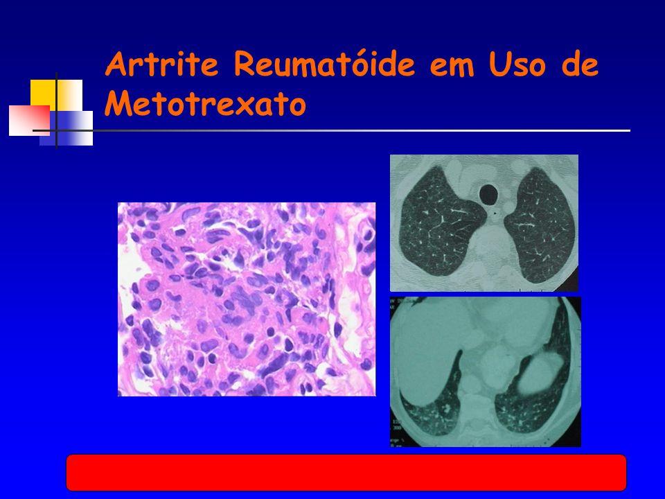 Artrite Reumatóide em Uso de Metotrexato