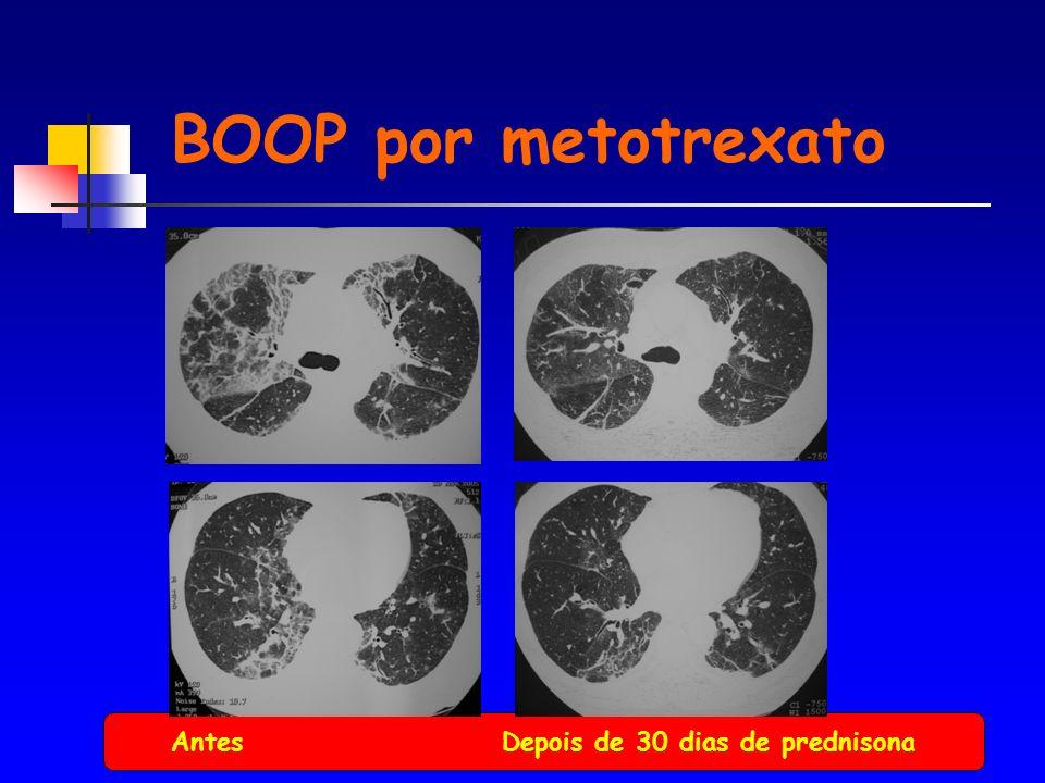 Antes Depois de 30 dias de prednisona BOOP por metotrexato