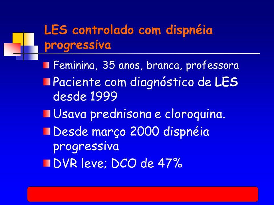 LES controlado com dispnéia progressiva Feminina, 35 anos, branca, professora Paciente com diagnóstico de LES desde 1999 Usava prednisona e cloroquina.