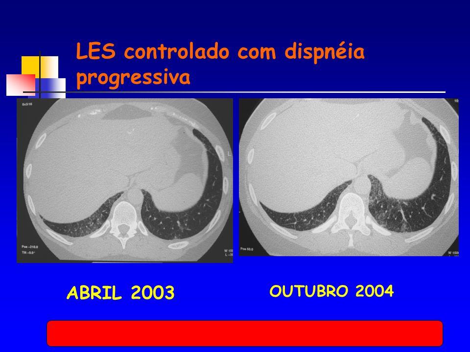 ABRIL 2003 OUTUBRO 2004 LES controlado com dispnéia progressiva