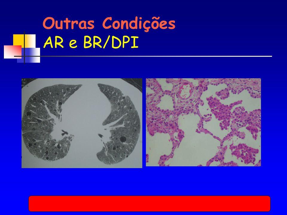 Outras Condições AR e BR/DPI