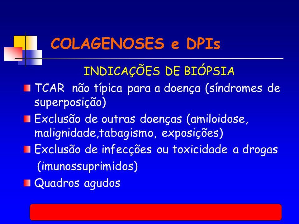 COLAGENOSES e DPIs INDICAÇÕES DE BIÓPSIA TCAR não típica para a doença (síndromes de superposição) Exclusão de outras doenças (amiloidose, malignidade,tabagismo, exposições) Exclusão de infecções ou toxicidade a drogas (imunossuprimidos) Quadros agudos