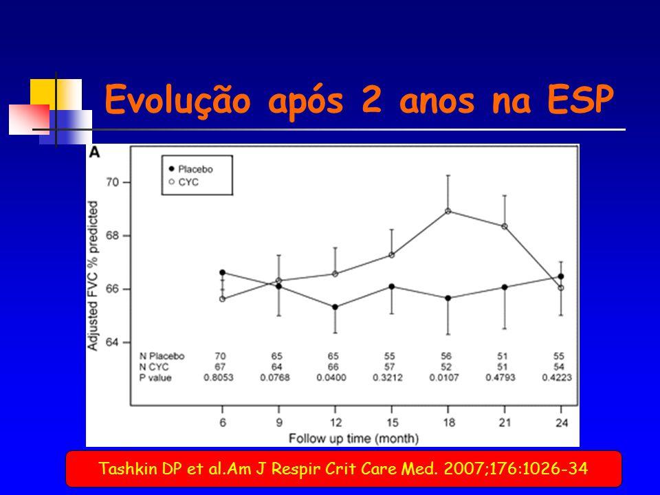 Tashkin DP et al.Am J Respir Crit Care Med. 2007;176:1026-34 Evolução após 2 anos na ESP