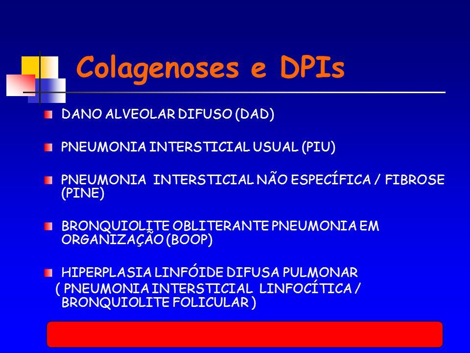 DANO ALVEOLAR DIFUSO (DAD) PNEUMONIA INTERSTICIAL USUAL (PIU) PNEUMONIA INTERSTICIAL NÃO ESPECÍFICA / FIBROSE (PINE) BRONQUIOLITE OBLITERANTE PNEUMONIA EM ORGANIZAÇÃO (BOOP) HIPERPLASIA LINFÓIDE DIFUSA PULMONAR ( PNEUMONIA INTERSTICIAL LINFOCÍTICA / BRONQUIOLITE FOLICULAR ) Colagenoses e DPIs