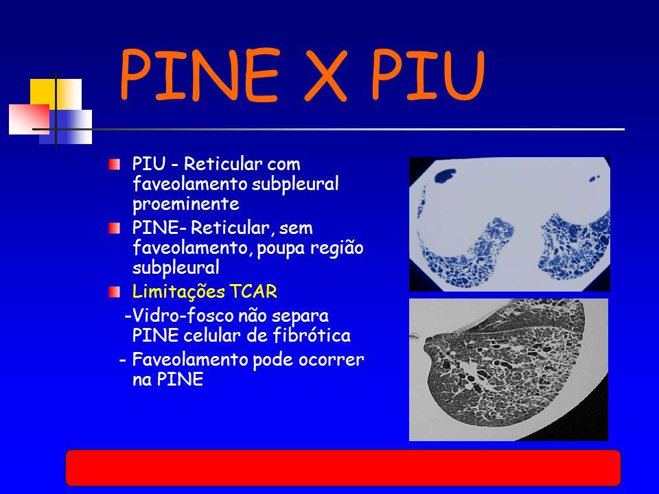 PINE X PIU PIU - Reticular com faveolamento subpleural proeminente PINE- Reticular, sem faveolamento, poupa região subpleural Limitações TCAR -Vidro-fosco não separa PINE celular de fibrótica - Faveolamento pode ocorrer na PINE