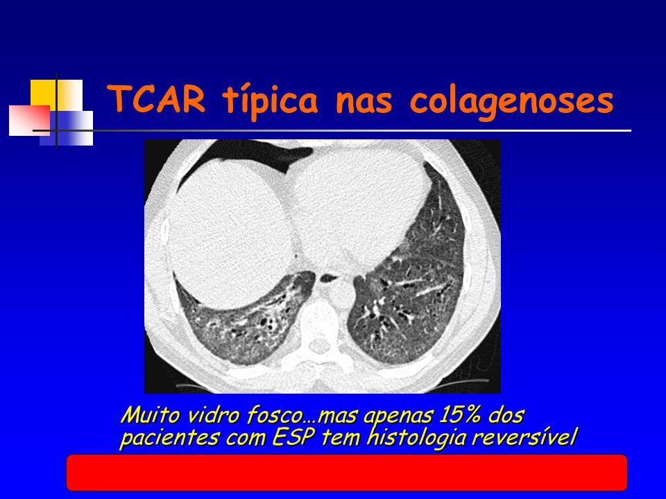 TCAR típica nas colagenoses Muito vidro fosco…mas apenas 15% dos pacientes com ESP tem histologia reversível
