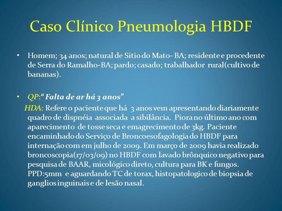 Caso Clínico * HDA Nega febre, sudorese noturna.