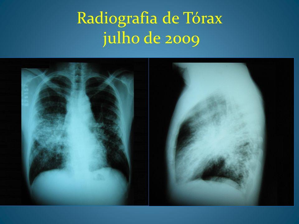 TC de tórax(julho de 2009)