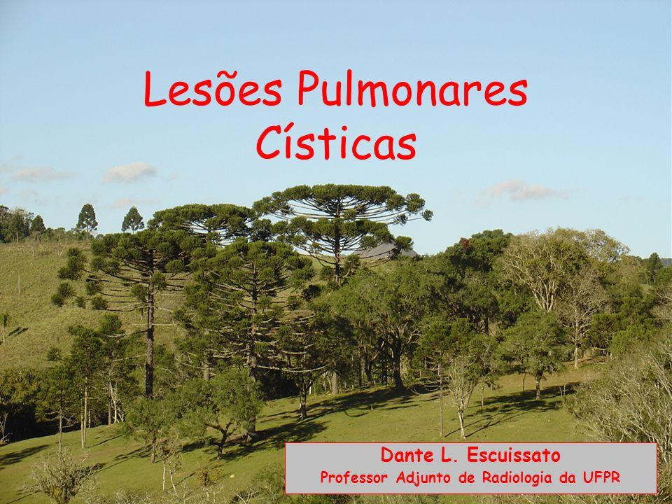 HISTIOCITOSE DE CÉLULAS DE LANGERHANS Distribuição: predomínio por terços médios e superiores dos pulmões.