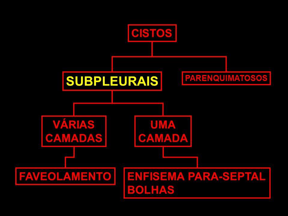 CISTOS SUBPLEURAIS PARENQUIMATOSOS VÁRIAS CAMADAS UMA CAMADA FAVEOLAMENTOENFISEMA PARA-SEPTAL BOLHAS