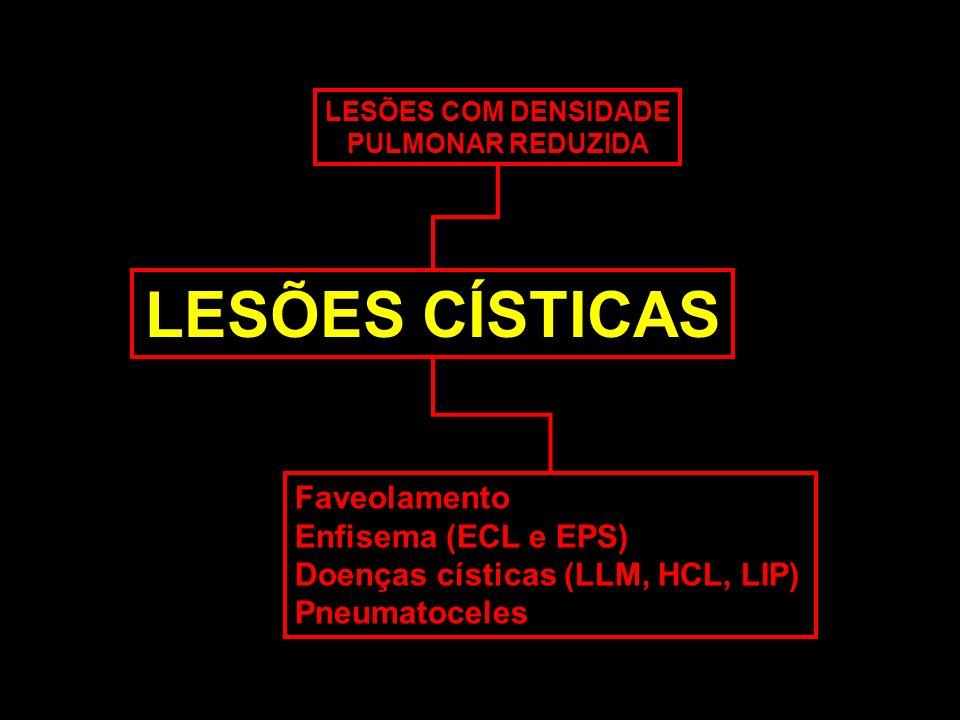 LESÕES COM DENSIDADE PULMONAR REDUZIDA LESÕES CÍSTICAS Faveolamento Enfisema (ECL e EPS) Doenças císticas (LLM, HCL, LIP) Pneumatoceles