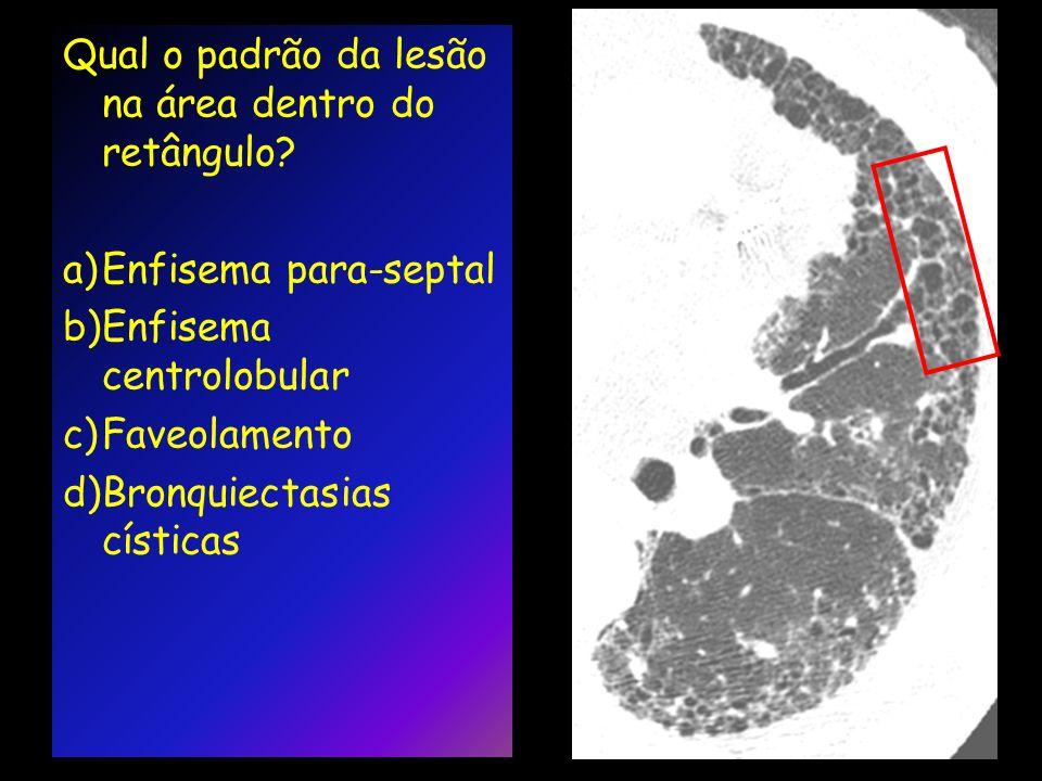 Qual o padrão da lesão na área dentro do retângulo? a)Enfisema para-septal b)Enfisema centrolobular c)Faveolamento d)Bronquiectasias císticas