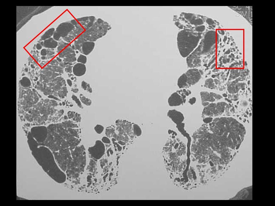 Qual o padrão da lesão na área dentro das áreas marcadas.