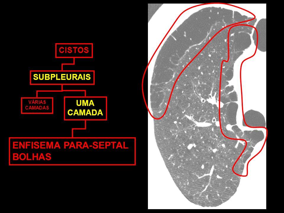 CISTOS SUBPLEURAIS VÁRIAS CAMADAS UMA CAMADA ENFISEMA PARA-SEPTAL BOLHAS