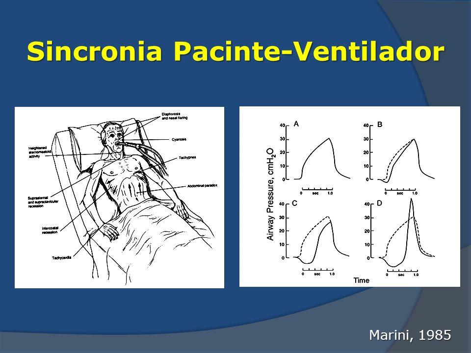 Sincronia Pacinte-Ventilador Marini, 1985
