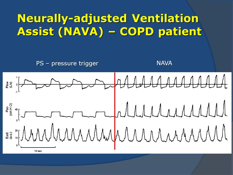 Neurally-adjusted Ventilation Assist (NAVA) – COPD patient PS – pressure trigger NAVA