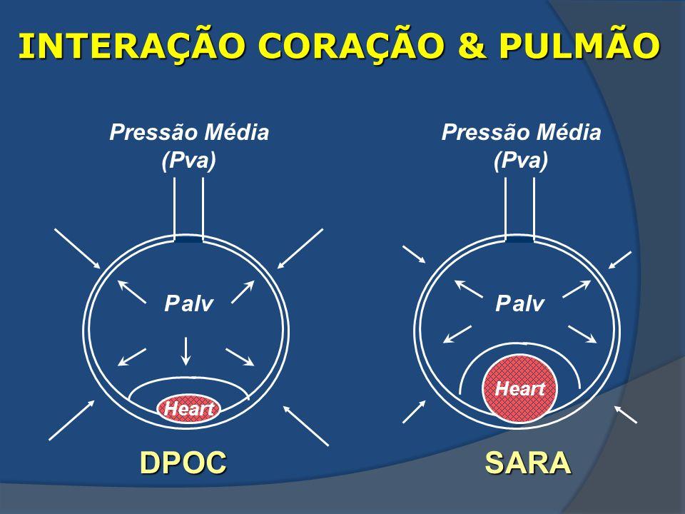 INTERAÇÃO CORAÇÃO & PULMÃO Heart P alv Pressão Média (Pva) DPOC P alv SARA Heart Pressão Média (Pva)