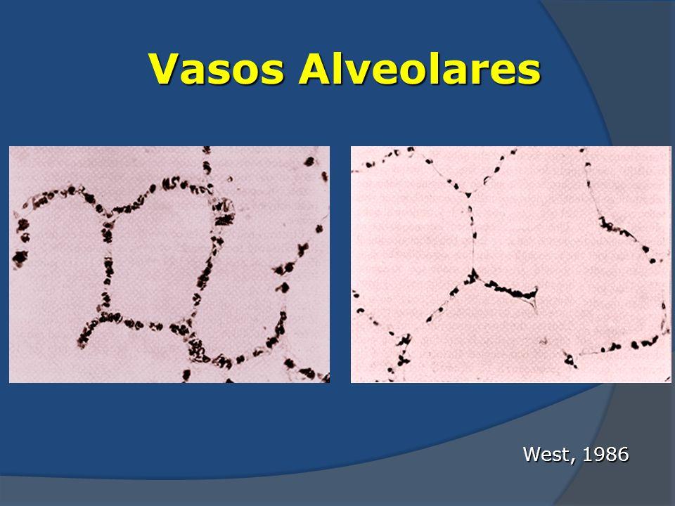 West, 1986 Vasos Alveolares