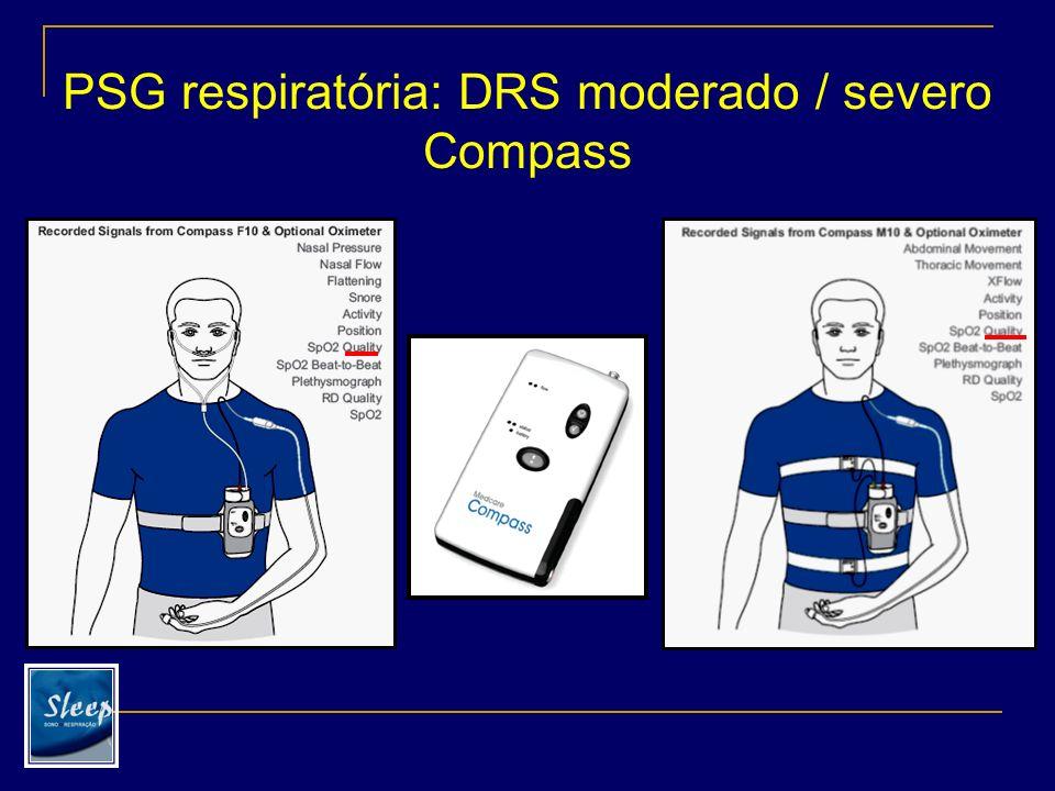 PSG respiratória: DRS moderado / severo Embletta