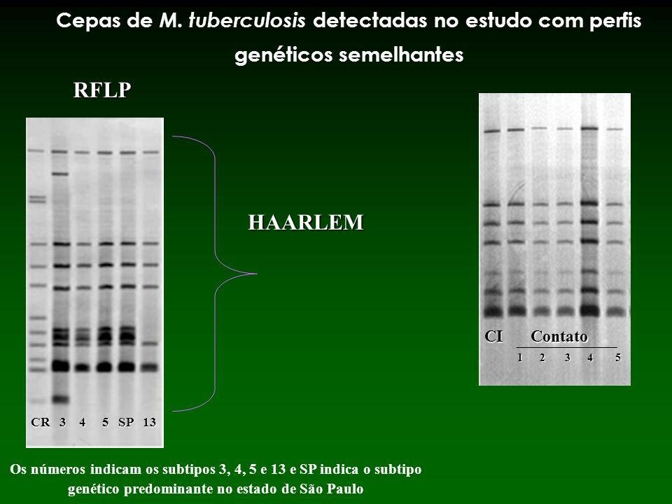 Cepas de M. tuberculosis detectadas no estudo com perfis genéticos semelhantes Os números indicam os subtipos 3, 4, 5 e 13 e SP indica o subtipo genét