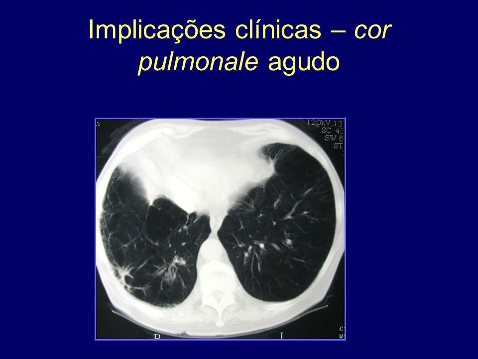 Implicações clínicas – cor pulmonale agudo