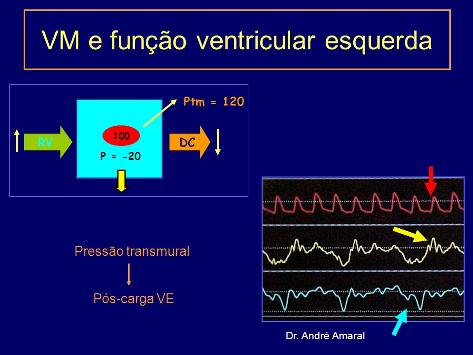 VM e função ventricular esquerda Ptm = 120 RVDC 100 P = -20 Pressão transmural Pós-carga VE Dr.