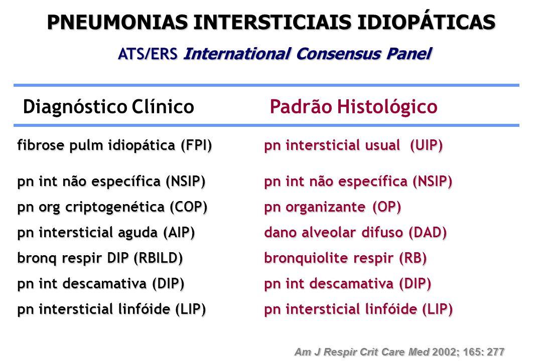PNEUMONIAS INTERSTICIAIS IDIOPÁTICAS ATS/ERS International Consensus Panel ATS/ERS International Consensus Panel Diagnóstico Clínico Padrão Histológic