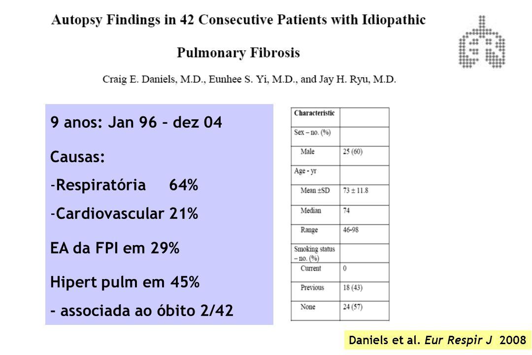 Daniels et al. Eur Respir J 2008 9 anos: Jan 96 – dez 04 Causas: -Respiratória 64% -Cardiovascular 21% EA da FPI em 29% Hipert pulm em 45% - associada
