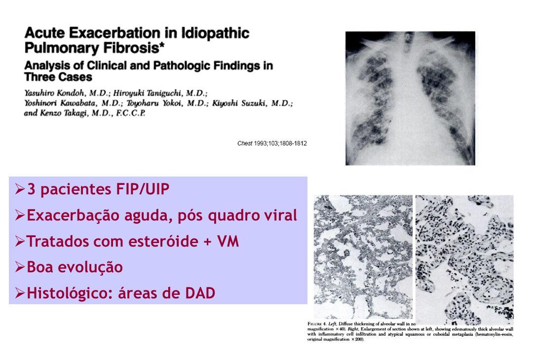 3 pacientes FIP/UIP Exacerbação aguda, pós quadro viral Tratados com esteróide + VM Boa evolução Histológico: áreas de DAD