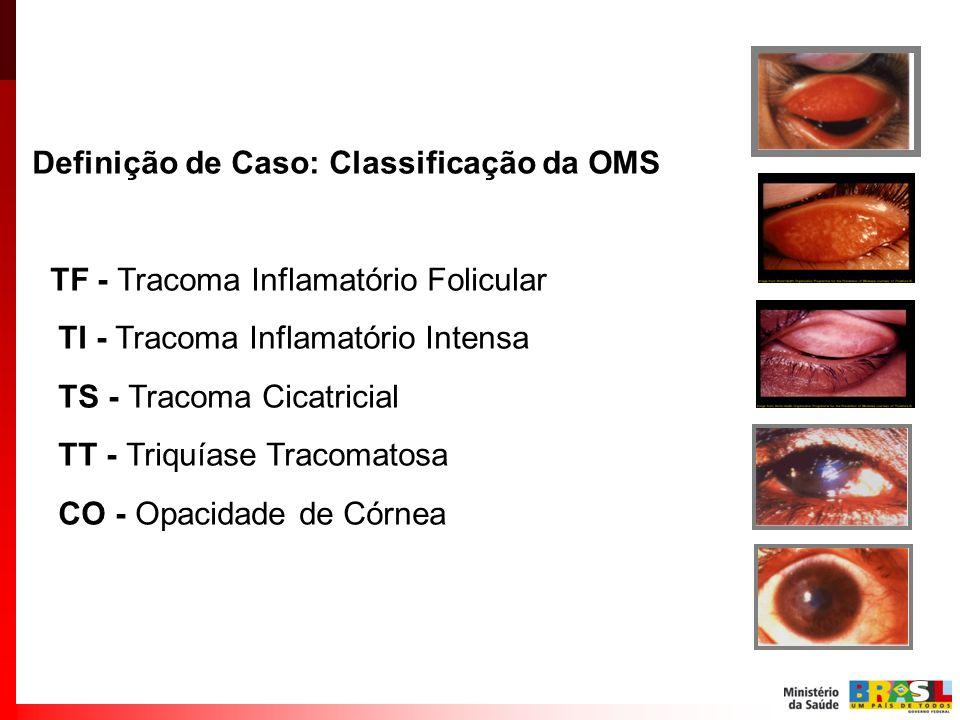 Definição de Caso: Classificação da OMS TF - Tracoma Inflamatório Folicular TI - Tracoma Inflamatório Intensa TS - Tracoma Cicatricial TT - Triquíase