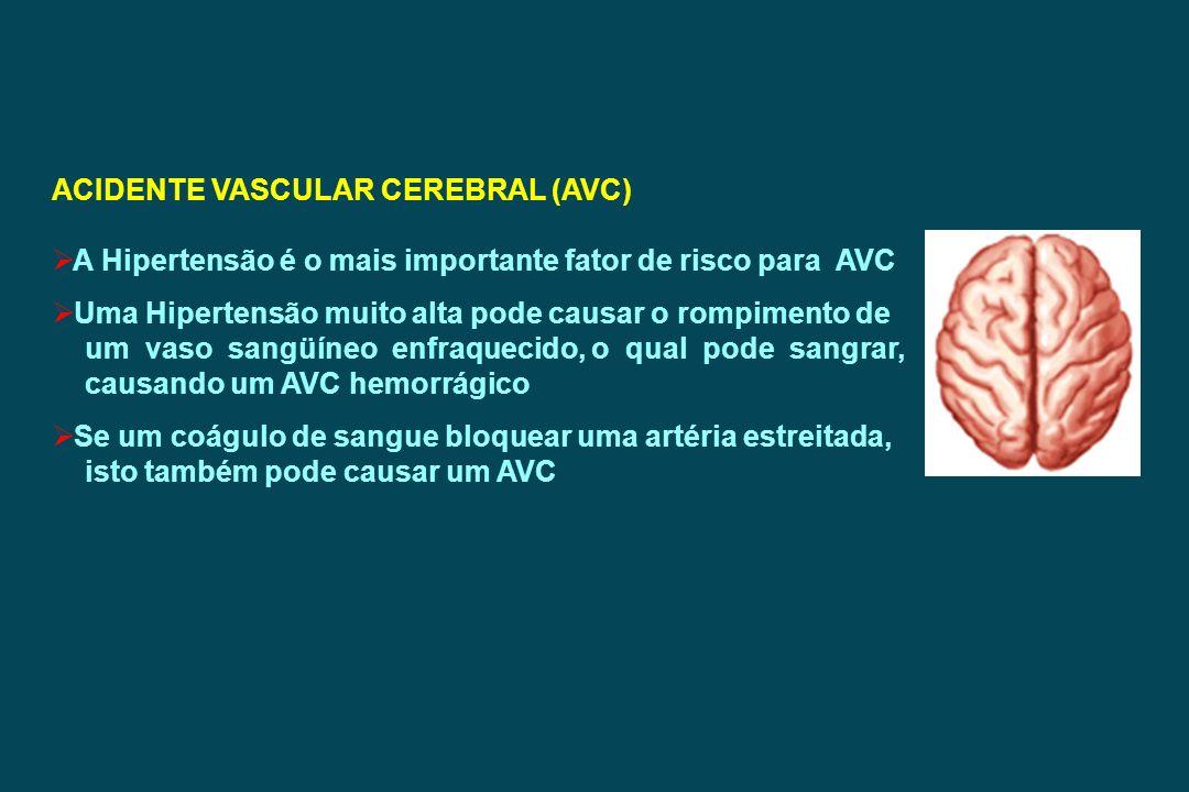 ACIDENTE VASCULAR CEREBRAL (AVC) A Hipertensão é o mais importante fator de risco para AVC Uma Hipertensão muito alta pode causar o rompimento de um v