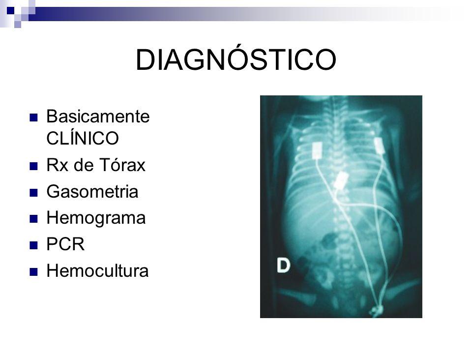 DIAGNÓSTICO Basicamente CLÍNICO Rx de Tórax Gasometria Hemograma PCR Hemocultura
