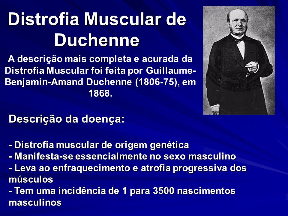 Distrofia Muscular de Duchenne A descrição mais completa e acurada da Distrofia Muscular foi feita por Guillaume- Benjamin-Amand Duchenne (1806-75), e
