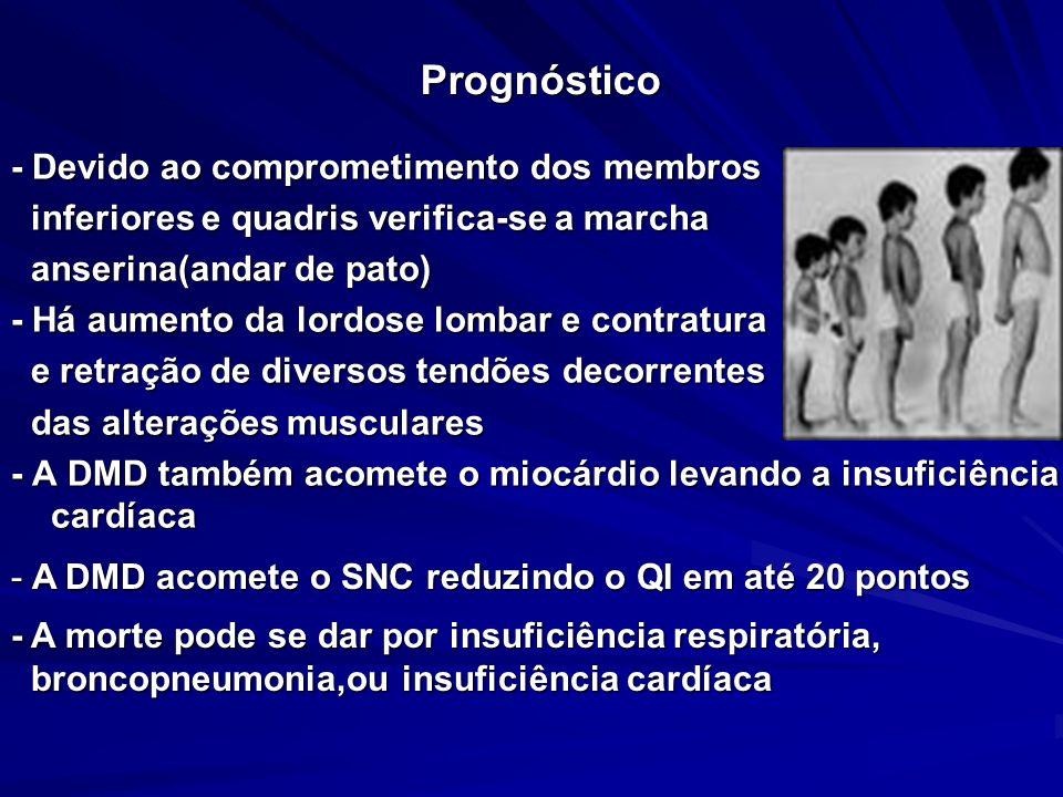 Prognóstico - Devido ao comprometimento dos membros inferiores e quadris verifica-se a marcha inferiores e quadris verifica-se a marcha anserina(andar