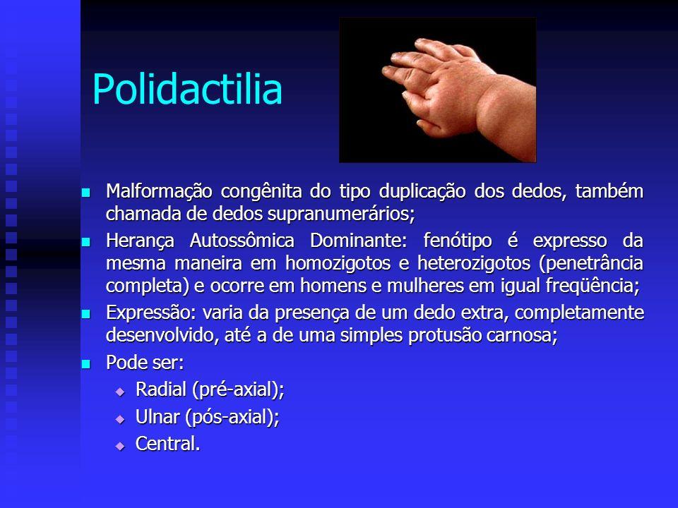 Malformação congênita do tipo duplicação dos dedos, também chamada de dedos supranumerários; Malformação congênita do tipo duplicação dos dedos, també