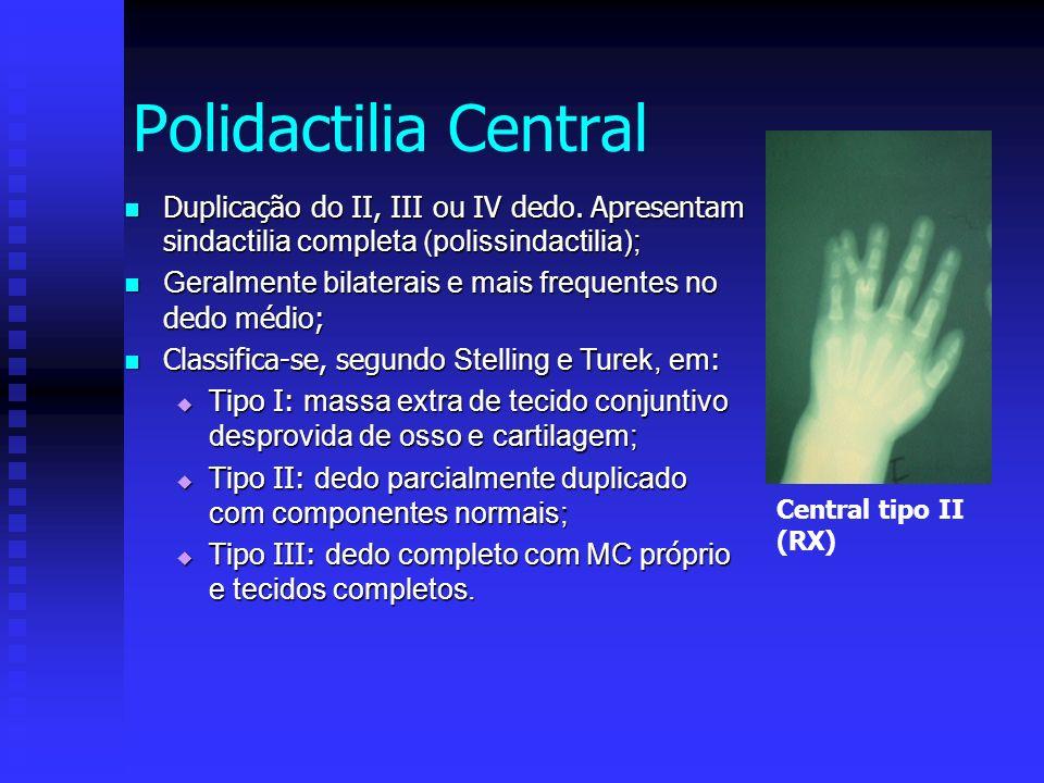 Duplicação do II, III ou IV dedo. Apresentam s indactilia completa (polissindactilia); Duplicação do II, III ou IV dedo. Apresentam s indactilia compl