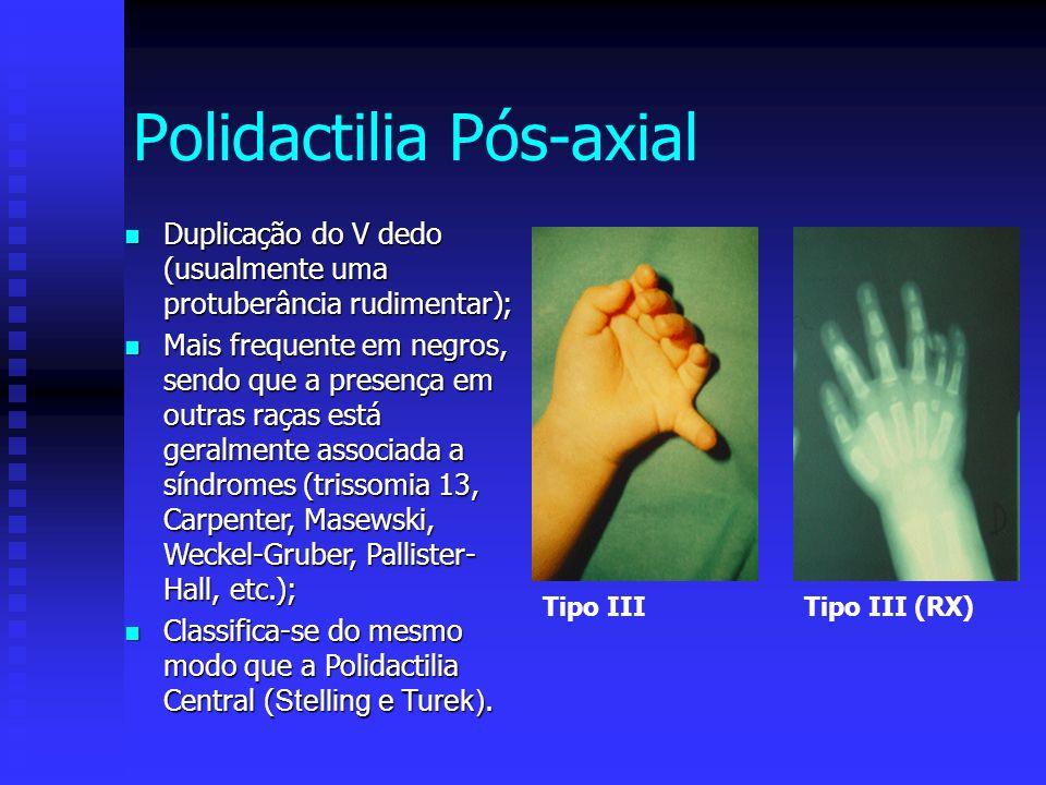 Tipo IIITipo III (RX) Polidactilia Pós-axial Duplicação do V dedo (usualmente uma protuberância rudimentar); Duplicação do V dedo (usualmente uma prot