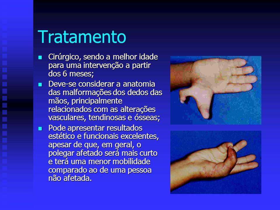 Tratamento Cirúrgico, sendo a melhor idade para uma intervenção a partir dos 6 meses; Cirúrgico, sendo a melhor idade para uma intervenção a partir do