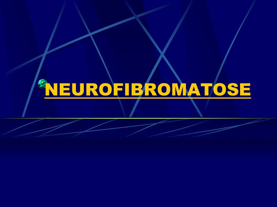 Neurofibromatose tipo 2 Neurofibromatose tipo 2 (NF2) é causada por uma mutação (alteração) no gene NF2 localizado no cromossomo 22q12.