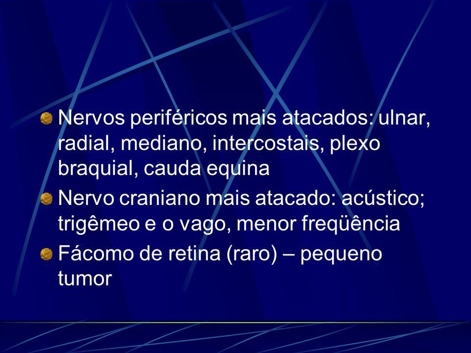 Nervos periféricos mais atacados: ulnar, radial, mediano, intercostais, plexo braquial, cauda equina Nervo craniano mais atacado: acústico; trigêmeo e
