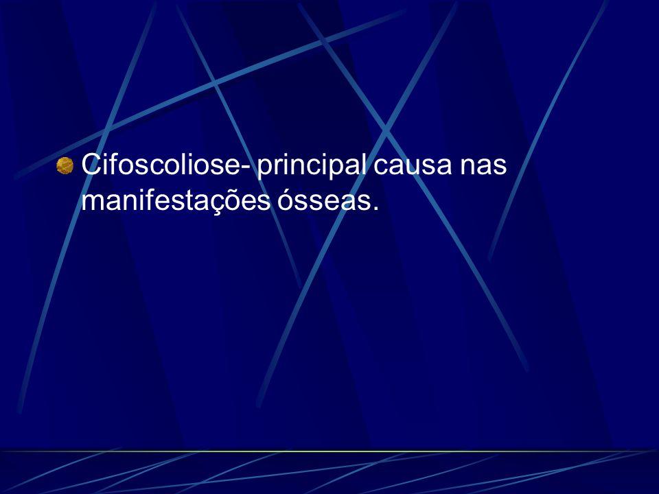 Cifoscoliose- principal causa nas manifestações ósseas.