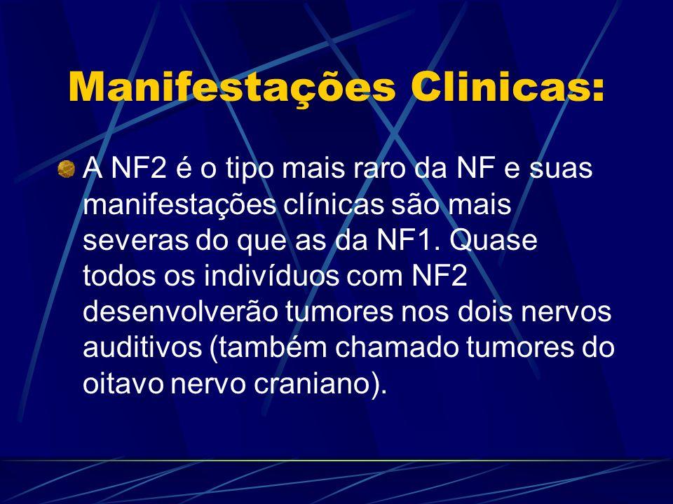 Manifestações Clinicas: A NF2 é o tipo mais raro da NF e suas manifestações clínicas são mais severas do que as da NF1. Quase todos os indivíduos com