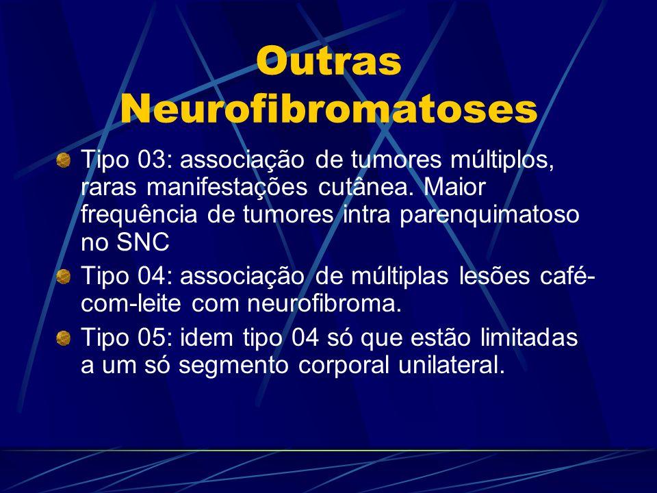 Outras Neurofibromatoses Tipo 03: associação de tumores múltiplos, raras manifestações cutânea. Maior frequência de tumores intra parenquimatoso no SN