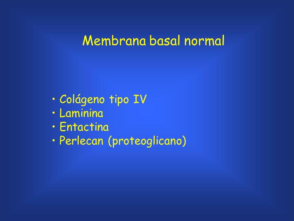 Membrana basal normal Colágeno tipo IV Laminina Entactina Perlecan (proteoglicano)