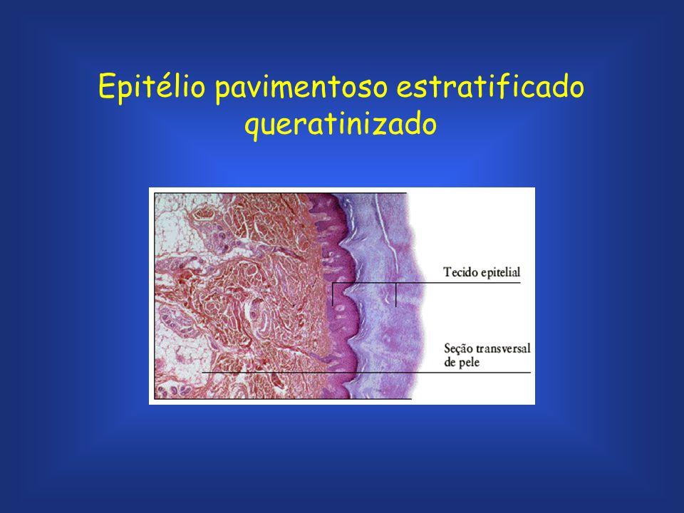 Epitélio pavimentoso estratificado não queratinizado