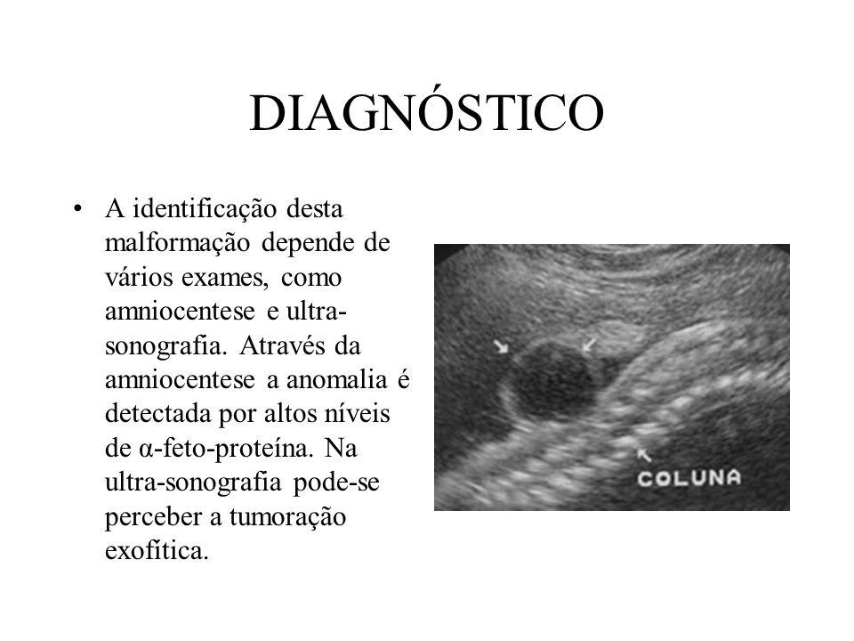 ABORDAGEM Com a formação do grupo interdisciplinar, foram unificados os critérios para o diagnóstico e método de abordagem da patologia.