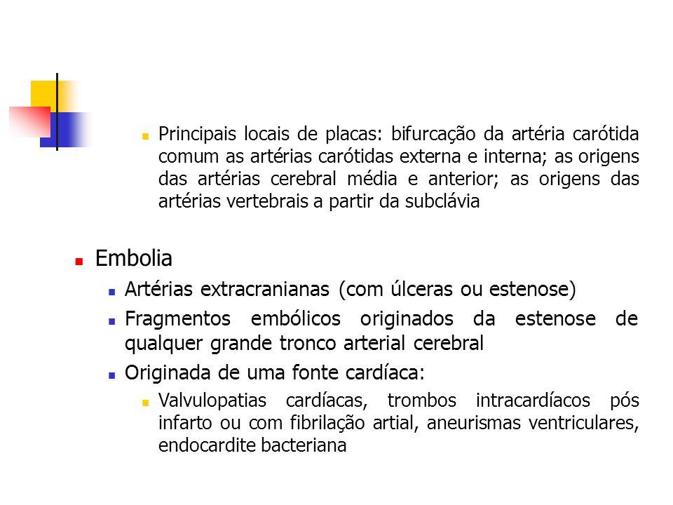 Principais locais de placas: bifurcação da artéria carótida comum as artérias carótidas externa e interna; as origens das artérias cerebral média e an
